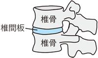 椎間板と椎骨のイラスト